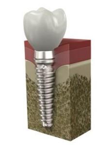 dentists that provide Dental implants in lexington